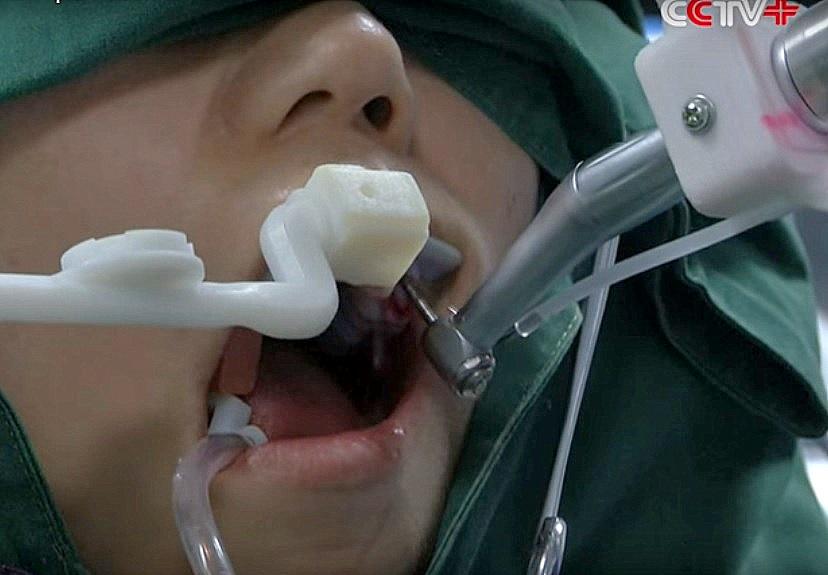 robot dentystyczny